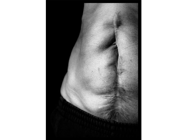 C-Section Scar Pictures | Photo Gallery