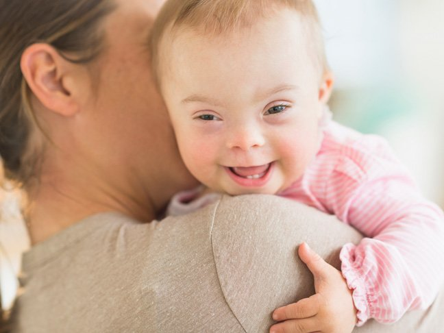 Birth Defects - Down Syndrome